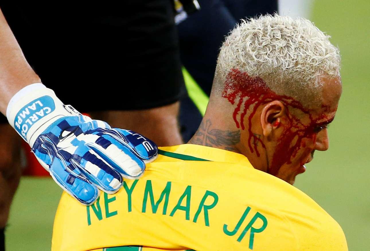 6 Οκτ. Ματώνουν οι ζωντανοί θρύλοι; Ο 24 χρονος Νεϊμάρ έβαλε ένα γκολ κι έστρωσε άλλα δύο παίζοντας για τη χώρα του, Βραζιλία κατά της Βολιβίας στα προκριματικά για το Μουντιάλ 2018, στη ζώνη της Νοτίου Αμερικής. Εφαγε μία αγκωνιά. Ναι, ματώνουν και μάλιστα πολύ