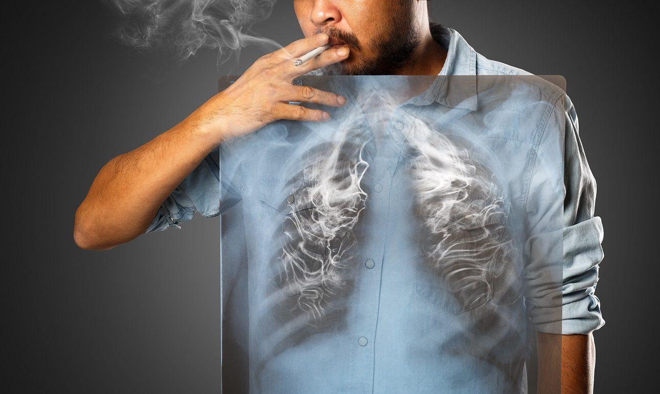 «Επουλώνονται» οι πνεύμονες μετά τη διακοπή του καπνίσματος;
