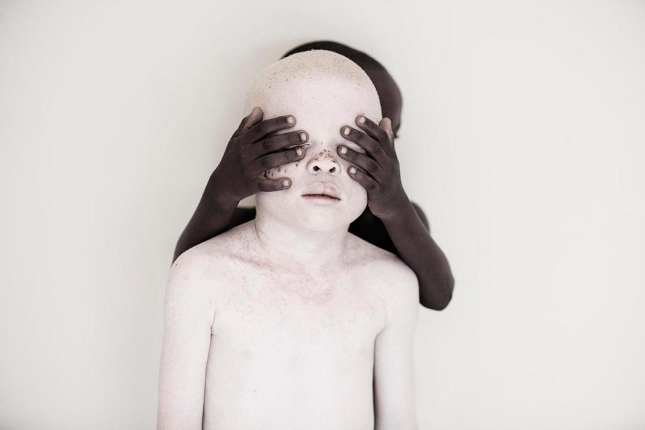Βραβείο στην κατηγορία Πρόσωπα, Ανθρωποι και Πολιτισμός (Συλλογή). Η φωτογράφος συνεργάστηκε με το ίδρυμα Josephat Torner για να ευαισθητοποιήσει και να ενημερώσει για τις δυσκολίες που αντιμετωπίζουν οι άνθρωποι με αλμπινισμό στην Τανζανία. Τα παιδιά με έλλειψη μελανίνης θεωρούνται κακά στην αφρικανική χώρα, και πολλές φορές δολοφονούνται καθώς πιστεύεται πως ο θάνατος τους θα φέρει καλή τύχη
