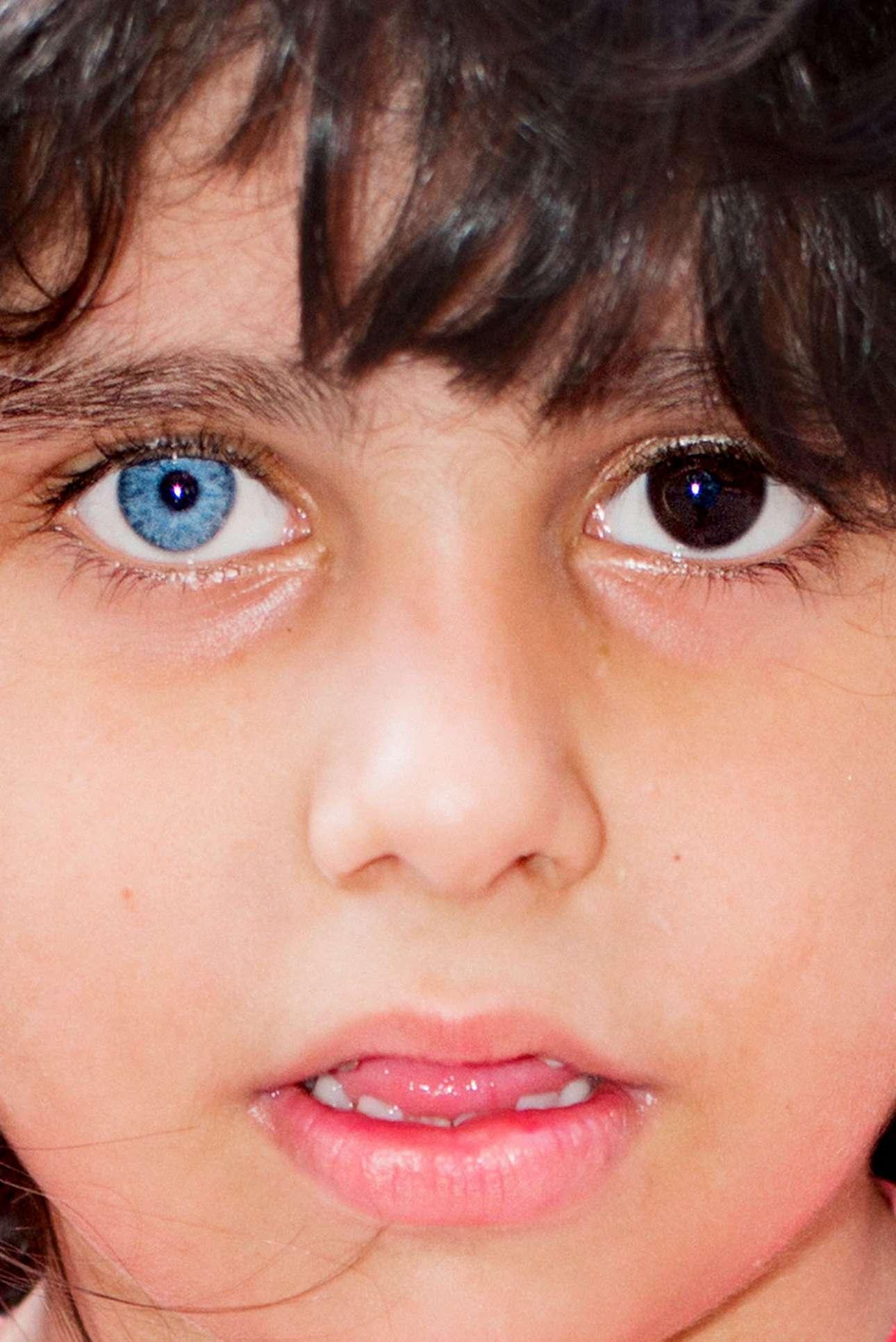Προσφυγόπουλο από τη Συρία στο Ταρλάμπασι της Τουρκίας. Το κοριτσάκι έχασε και τους δύο γονείς του στον πόλεμο και υιοθετήθηκε από οικογενειακούς φίλους, οι οποίο θεωρούν το διαφορετικό χρώμα των ματιών της «δώρο Θεού»