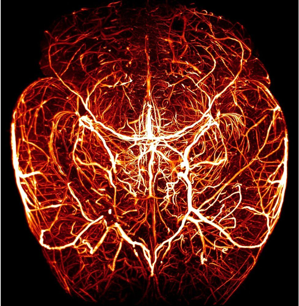 Τιμητική διάκριση. Μοιάζει με καρδιά, αλλά δεν είναι. Εδώ οι επιστήμονες βλέπουν το πλούσιο αγγειακό πλέγμα στον εγκέφαλο ενός ποντικού. Πολλά από τα αγγεία είναι λεπτότερα, κάτι που σημαίνει ότι μπορεί να πάσχει από κάποιου τύπου άνοια ή από διαβήτη