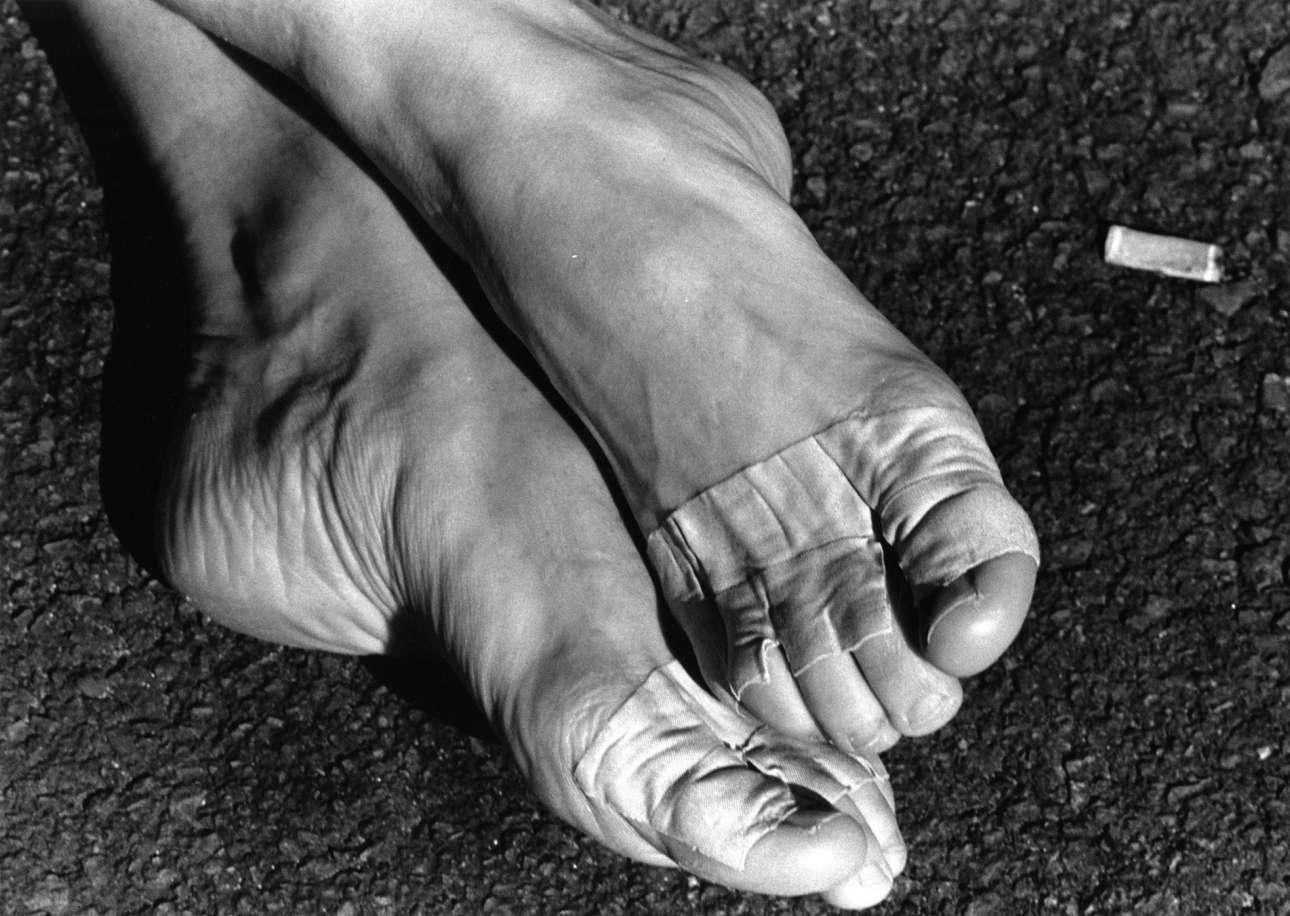 Κοντινό στα πονεμένα πόδια μιας χορεύτριας του Εθνικού Αγγλικού Μπαλέτου, το 1999