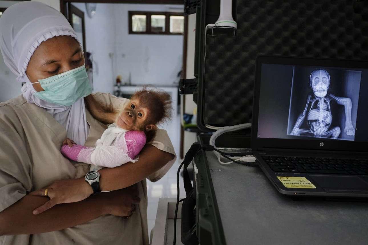 «Διάσωση ουρακοτάγκων», βραβείο στην κατηγορία «Πλανήτης σε κίνδυνο»: Ο τριών μηνών θηλυκός ουρακοτάγκος Μπρέντα κατασχέθηκε από έναν κάτοικο του χωριού Ατσε. Το χέρι του είχε κοπεί στα δύο. Η κτηνίατρος του κέντρου SOCP στη Σουμάτρα την κρατάει τρυφερά αγκαλιά δίπλα στην ακτινογραφία της με το σπασμένο οστό