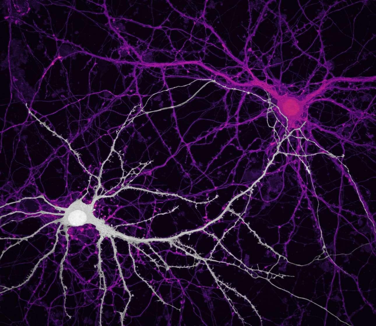 Εντυπωσιακή εικόνα των νευρωνικών δικτύων ενός ιππόκαμπου όπως την κατέγραψαν ερευνητές του Κολλεγίου Ιατρικής Baylor στο Χιούστον
