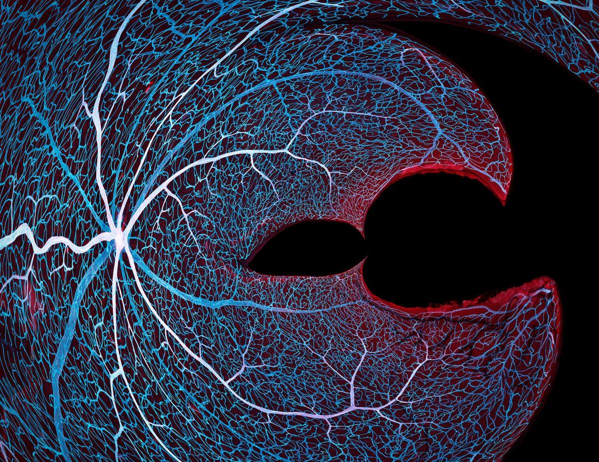 Ενα δίκτυο από μικροσκοπικά αγγεία στην ίριδα του ματιού του ποντικού